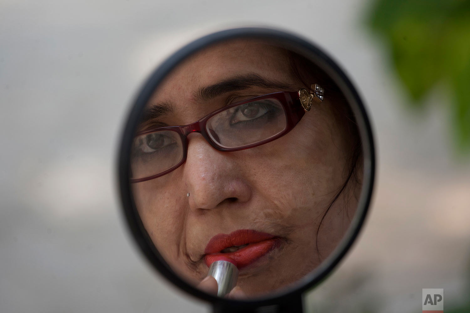 Pakistani acid attack victim Rukhsana Sharafuddin gets ready to attend a gathering at an NGO office to mark the International Women's Day in Karachi, Pakistan, Wednesday, March 8, 2017. (AP Photo/Shakil Adil)