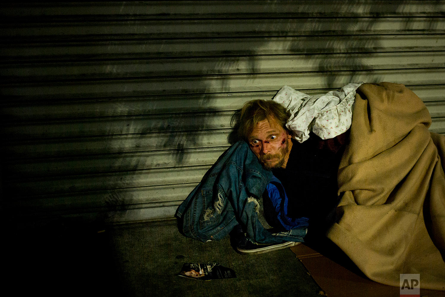 Bearing cuts all over his face, a homeless drug addict, who said his name is April Jane, aimlessly stares into space on a sidewalk in the Skid Row area of downtown Los Angeles, Thursday, Nov. 2, 2017. (AP Photo/Jae C. Hong)