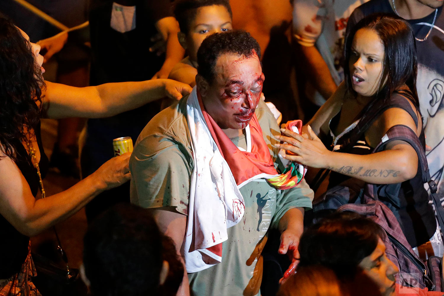 Supporters of Brazil's former President Luiz Inacio Lula da Silva try to help a man who was involved in a brawl outside the metal workers union headquarters where da Silva is hunkered down and his supporters have gathered, in Sao Bernardo do Campo, Brazil, Friday, April 6, 2018. Da Silva defied a 5 p.m. deadline to turn himself into police in the city of Curitiba so he can begin to serve a 12-year sentence on a corruption conviction. (AP Photo/Nelson Antoine)