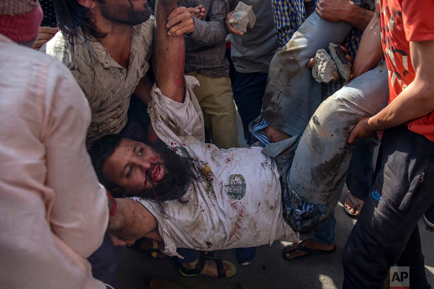 Kashmiri protesters tend to an injured man after a paramilitary vehicle ran over him during a protest in Srinagar, Indian controlled Kashmir, Friday, June 1, 2018.  (AP Photo/Dar Yasin)
