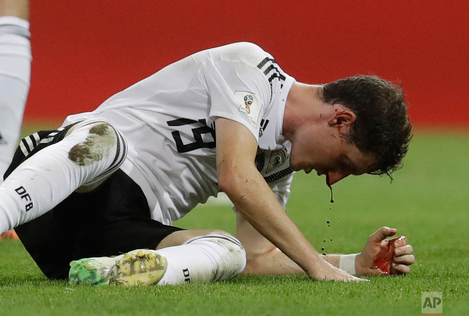 Blood drips from the nose of Germany's Sebastian Rudy during the group F match between Germany and Sweden at the 2018 soccer World Cup in the Fisht Stadium in Sochi, Russia, Saturday, June 23, 2018. (AP Photo/Michael Probst)