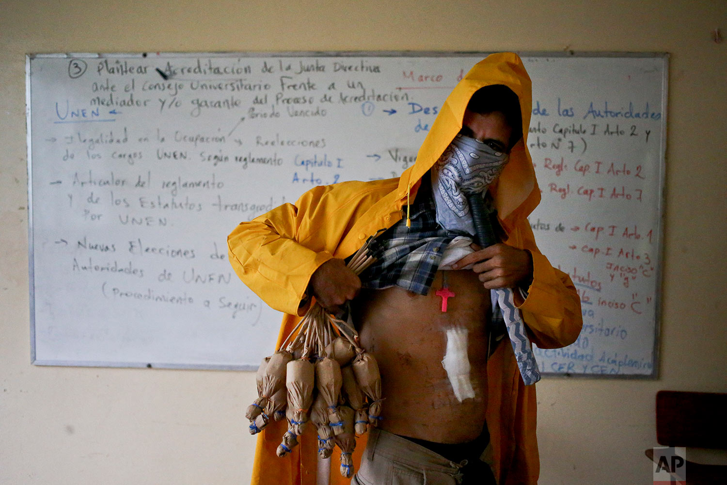 In this June 10, 2018 photo, a university student hiding his identity shows a wound he says he got when he was shot by government security forces during an anti-government protest, inside the Autonomous University of Nicaragua where students have barricaded themselves on campus in Managua, Nicaragua. (AP Photo/Esteban Felix)