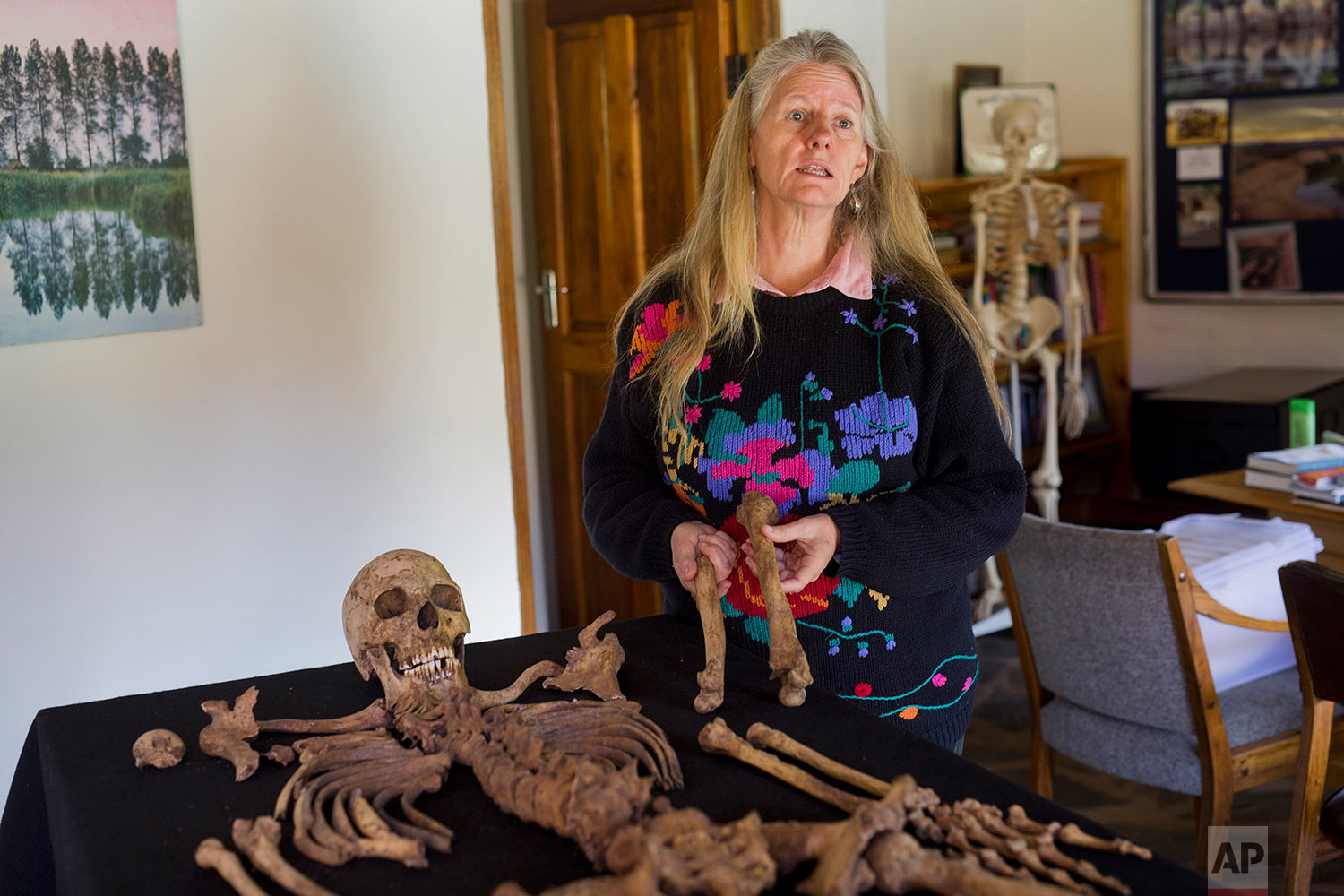 Shari Eppel, director of the Solidarity Peace Trust, holds the remains of Julius Mvulo Nyathi in Bulawayo, Zimbabwe. (AP Photo/Jerome Delay)