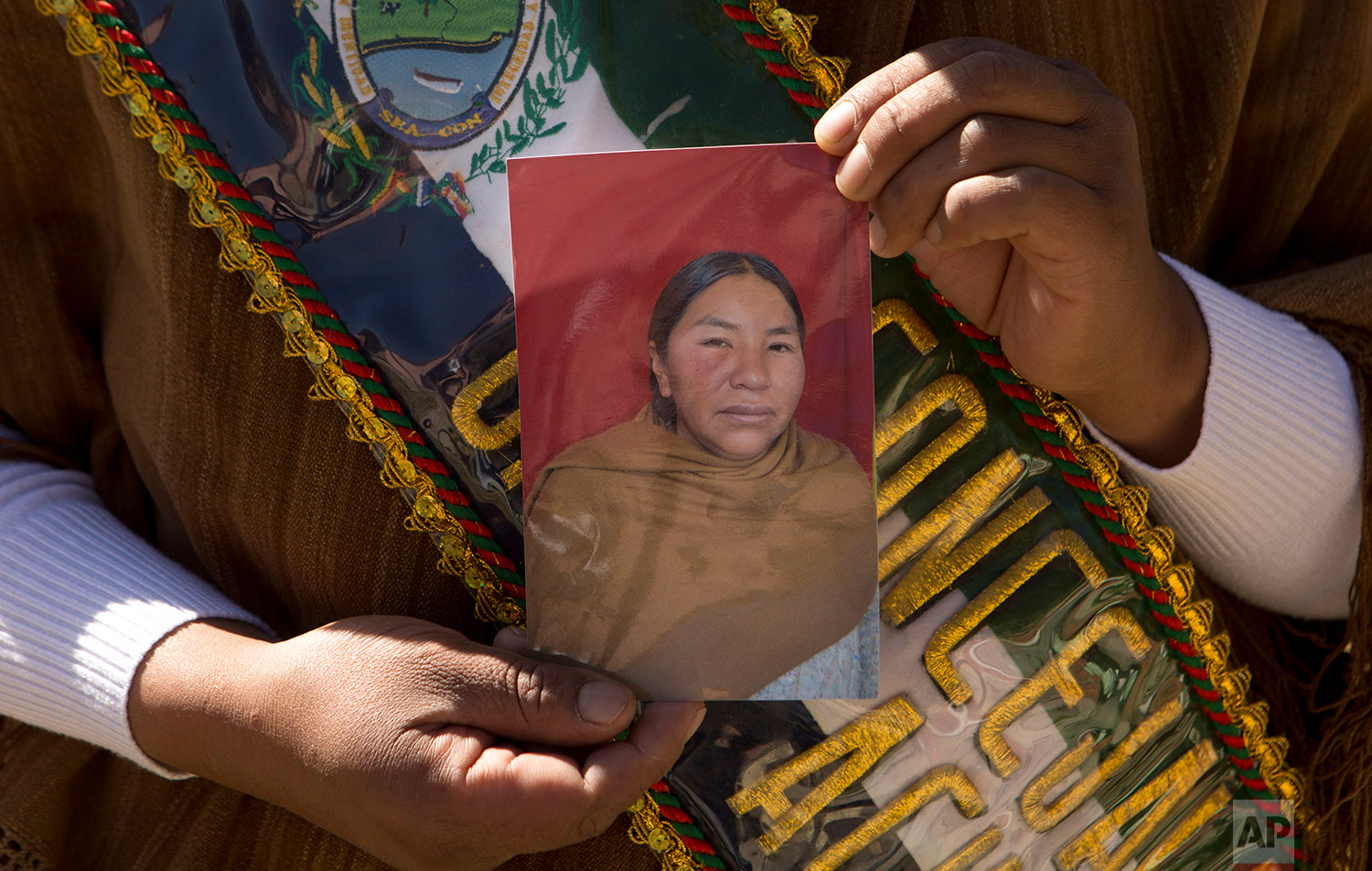 In this June 23, 2018 photo, Councilwoman Mary de la Cruz holds a photo showing the bruise caused by a male colleague who punched her in the face, in Achocalla, Bolivia. (AP Photo/Juan Karita)