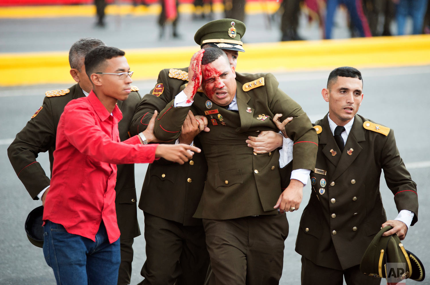 An uniformed official bleeds from the head following an incident during a speech by Venezuela's President Nicolas Maduro in Caracas, Venezuela, Saturday, Aug. 4, 2018. Seven people were injured in the apparent attack which came as Maduro celebrated the National Guard's 81st anniversary. Maduro's speech was abruptly cut short and soldiers could be seen breaking ranks and scattering. (Xinhua via AP)