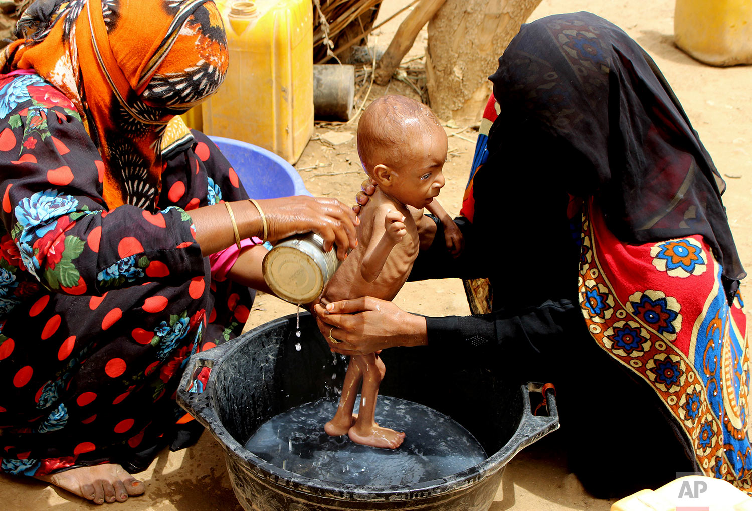 A severely malnourished infant is bathed in a bucket, Aug. 25, 2018 Aslam, Hajjah, Yemen. (AP Photo/Hammadi Issa)