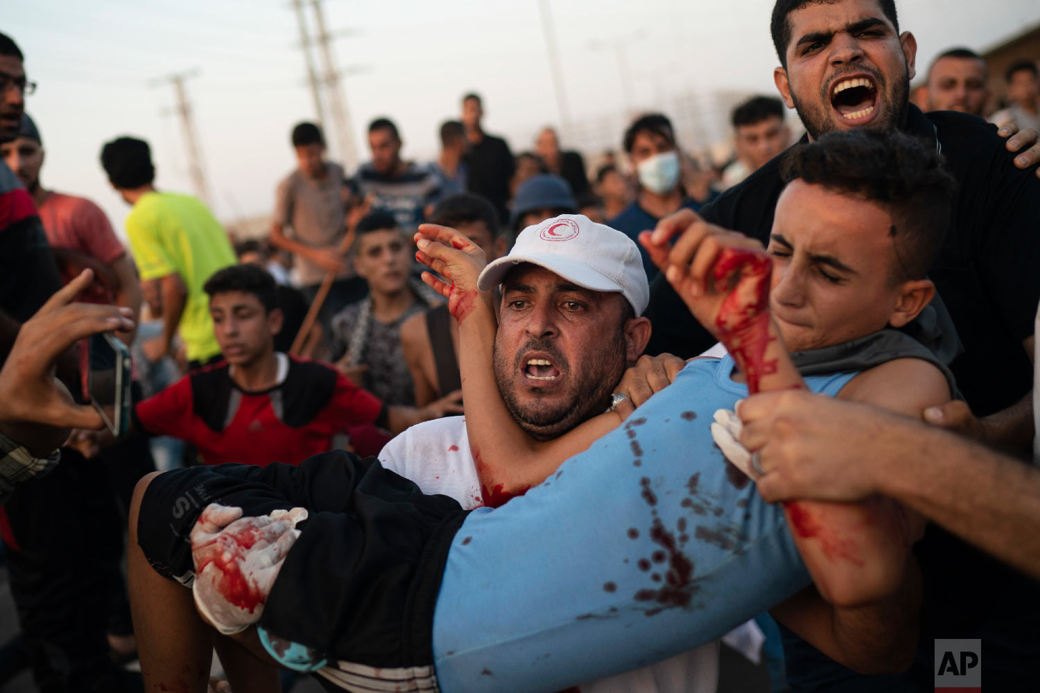 A young Palestinian protester is carried to an ambulance after being shot during a protest at the entrance of Erez border crossing between Gaza and Israel, in the northern Gaza Strip, Sept. 4, 2018. (AP Photo/Felipe Dana)