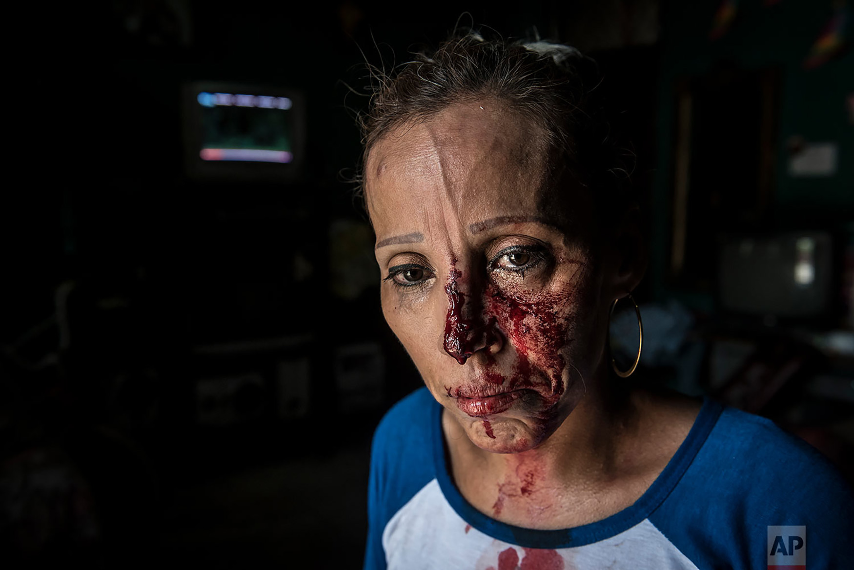 A woman with her face bloodied after she was pummeled by the police, stands in shock inside a house after a peaceful anti-government march was dissolved violently by government forces, in Managua, Nicaragua, Sept. 23, 2018. Police and militias opened fire on the demonstrators leaving at least one dead and several wounded. (AP Photo/Oscar Navarrete)