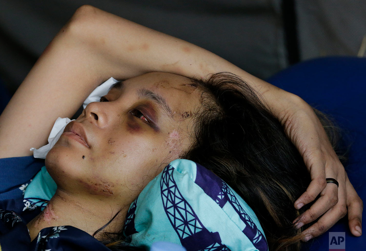 Anisa Cornelia rests as she lies inside a medical tent after being injured in a massive earthquake and tsunami in Palu, Central Sulawesi, Indonesia, Oct. 4, 2018. (AP Photo/Aaron Favila)