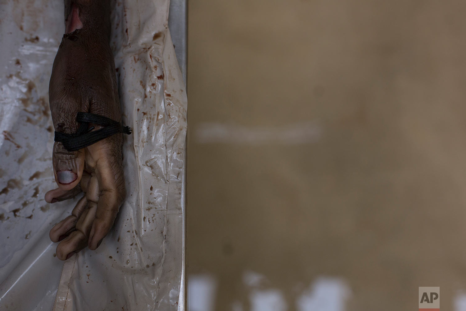 In this Monday, April 16, 2018 photo, the hand of an unidentified male is seen at a mortuary in Johannesburg during forensic examination. (AP Photo/Bram Janssen)