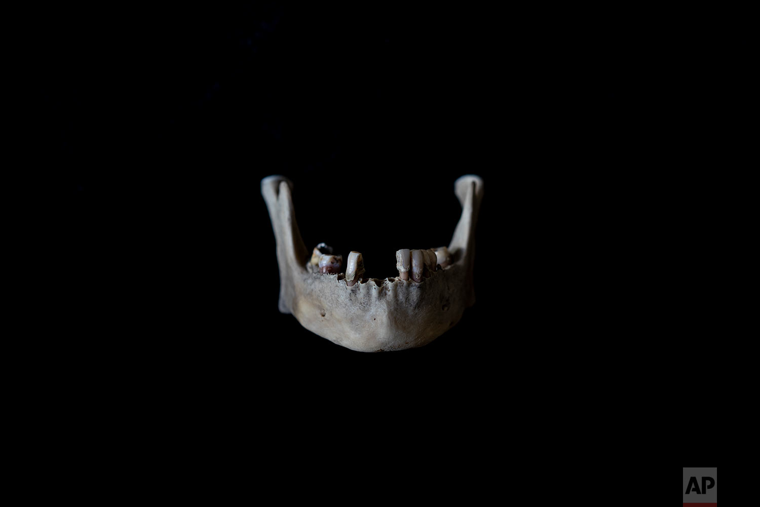 In this Monday Oct. 1, 2018 photo, the jaw of a black unidentified adult male is seen. The remains were found in August 2018 in a field in Johannesburg and brought to a mortuary for identification purposes. Once a demographic profile is estimated it will go to the victim identification center in the South African police department to create a facial reconstruction. (AP Photo/Bram Janssen)