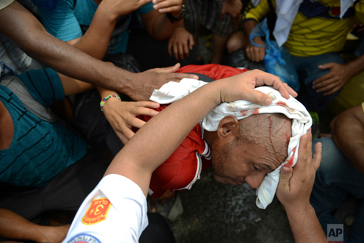 Migrants rush to the aide of a man injured by a rock thrown by an unidentified person at the border bridge in Tecun Uman, Guatemala, Friday, Oct. 19, 2018, as migrants broke down the gates at the Guatemala-Mexico border crossing. (AP Photo/Oliver de Ros)
