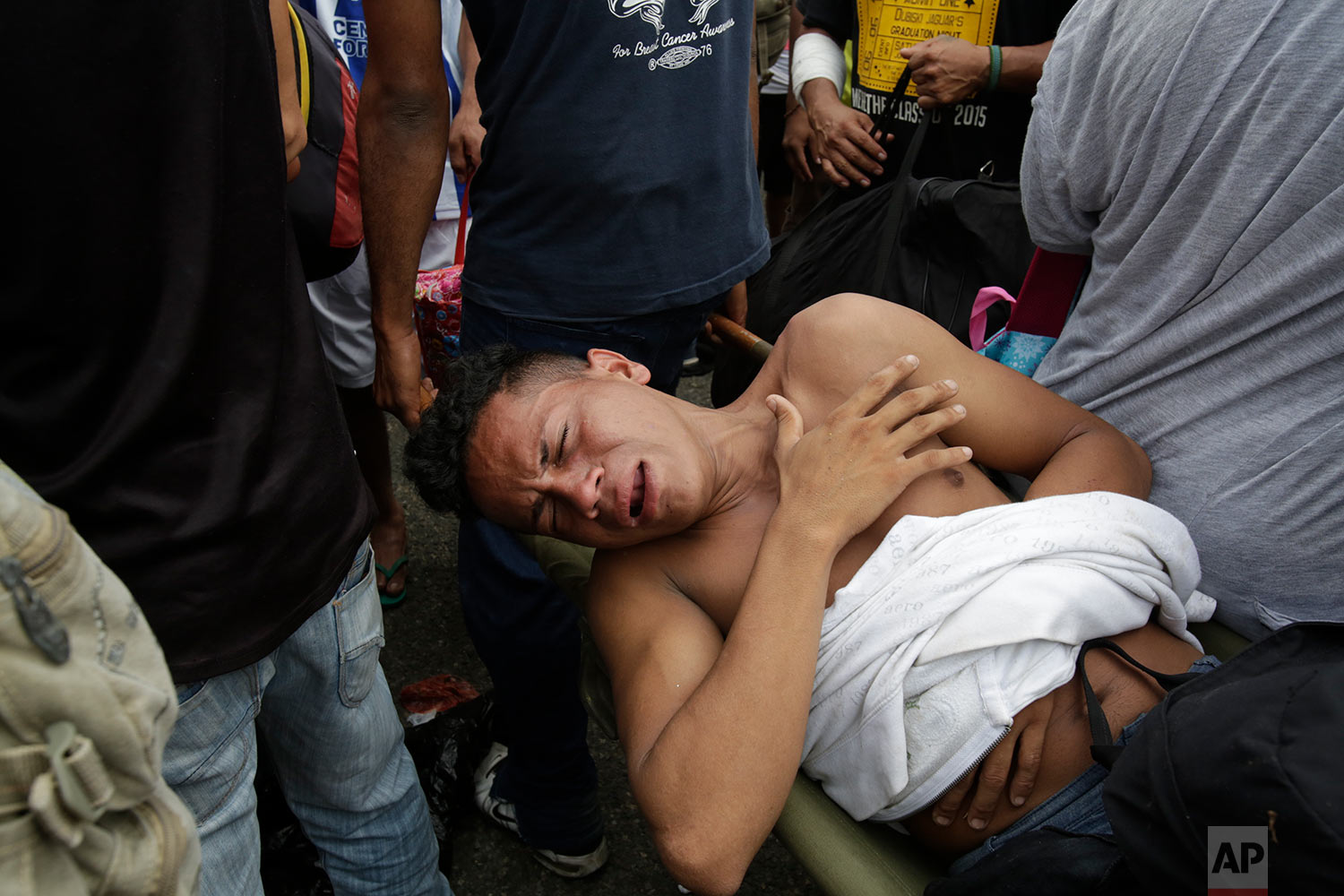 A wounded man grimaces in pain after clashes with the Mexican Federal Police at the border crossing in Ciudad Hidalgo, Mexico, Friday, Oct. 19, 2018. (AP Photo/Moises Castillo)