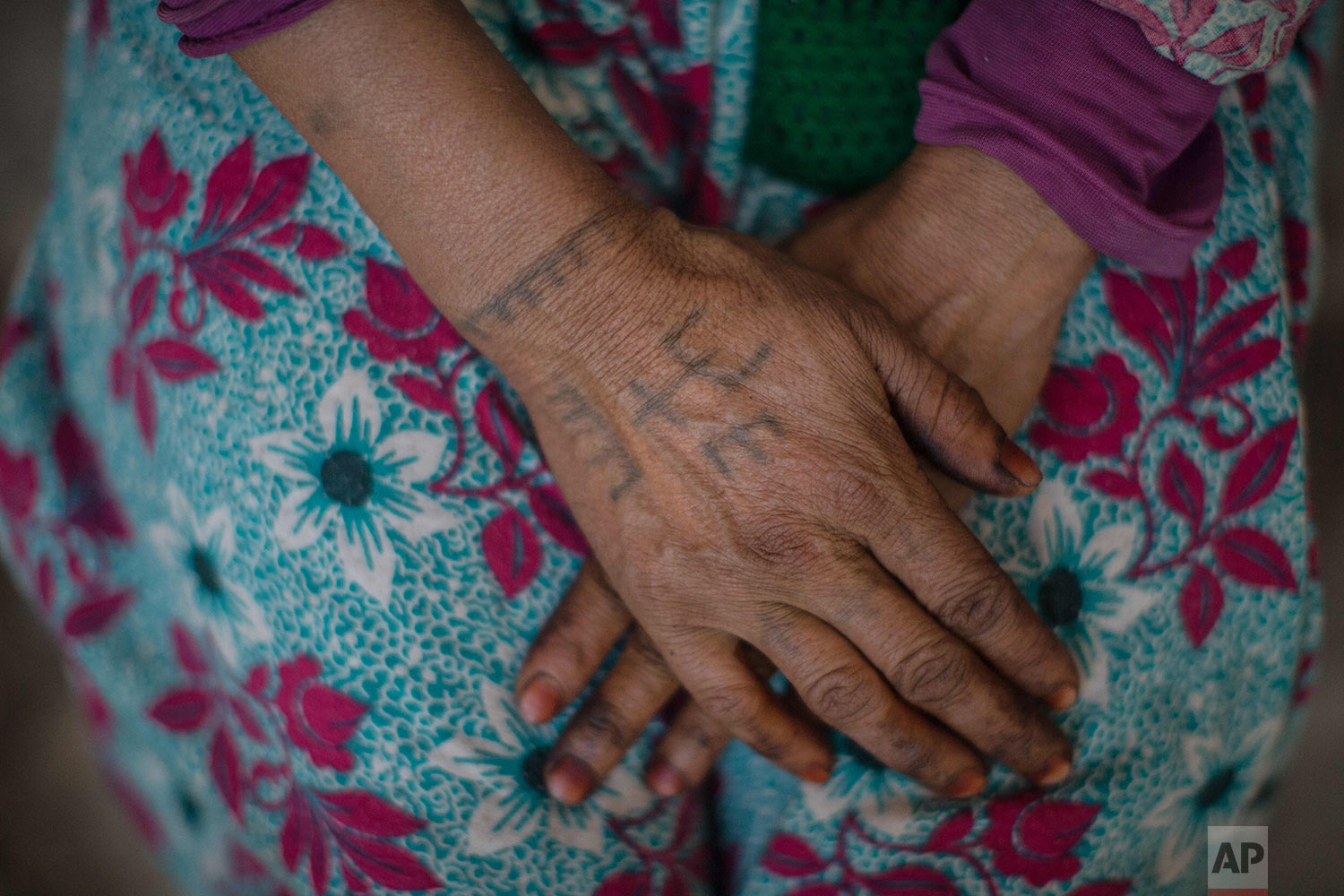 In this Saturday, Oct. 13, 2018 photo, Marhich Rkia Ali, 48, displays tattoos on her arm as she poses for a portrait, in the town of Anregui, near Azilal, central Morocco. (AP Photo/Mosa'ab Elshamy)