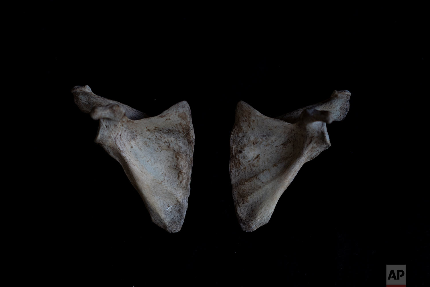 In this Monday Oct. 1, 2018 photo, the hyoid bone of a black unidentified adult male is seen. The remains were found in August 2018 in a field in Johannesburg and brought to a mortuary for identification purposes. Once a demographic profile is estimated it will go to the victim identification center in the South African police department to create a facial reconstruction. (AP Photo/Bram Janssen)