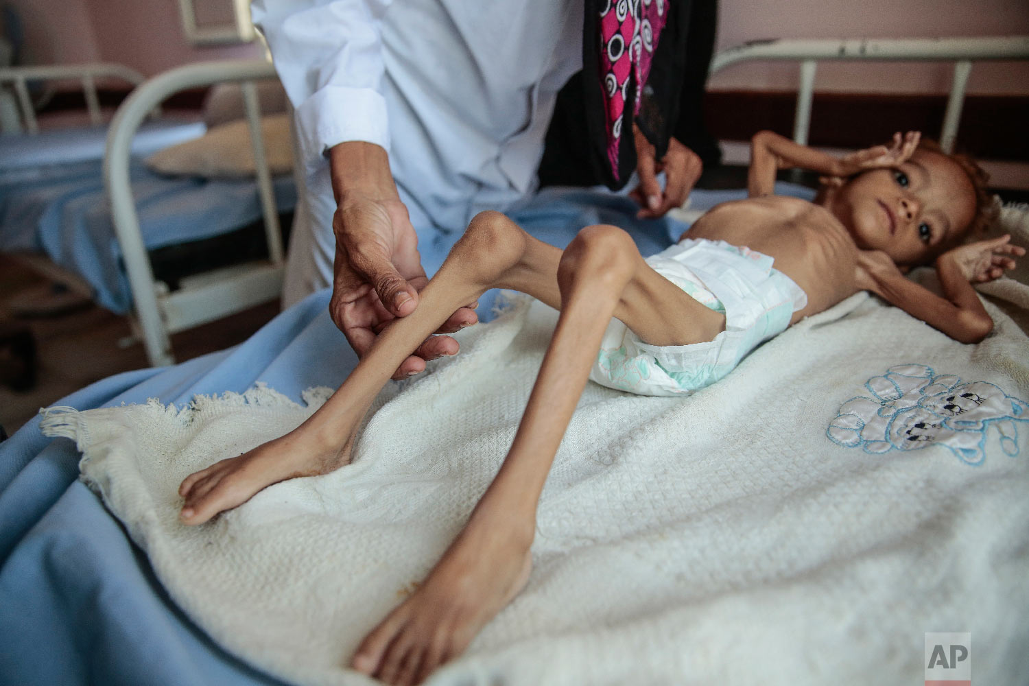 A severely malnourished boy rests on a hospital bed at the Aslam Health Center, Hajjah, Yemen. (AP Photo/Hani Mohammed)
