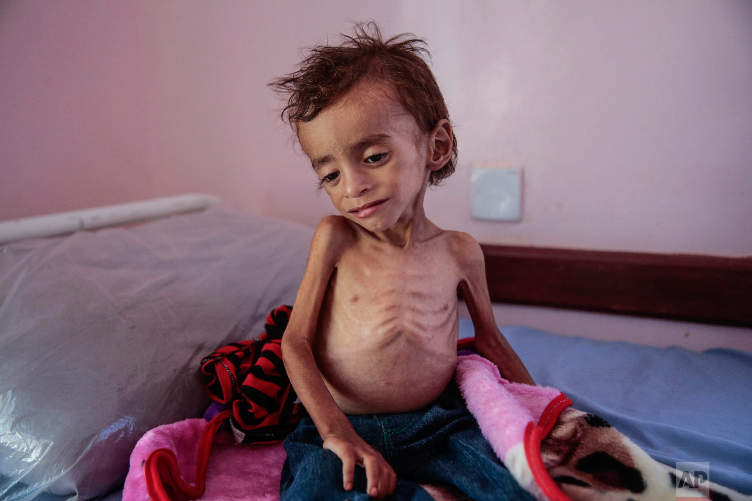 A malnourished boy sits on a hospital bed at the Aslam Health Center, Hajjah, Yemen. (AP Photo/Hani Mohammed)