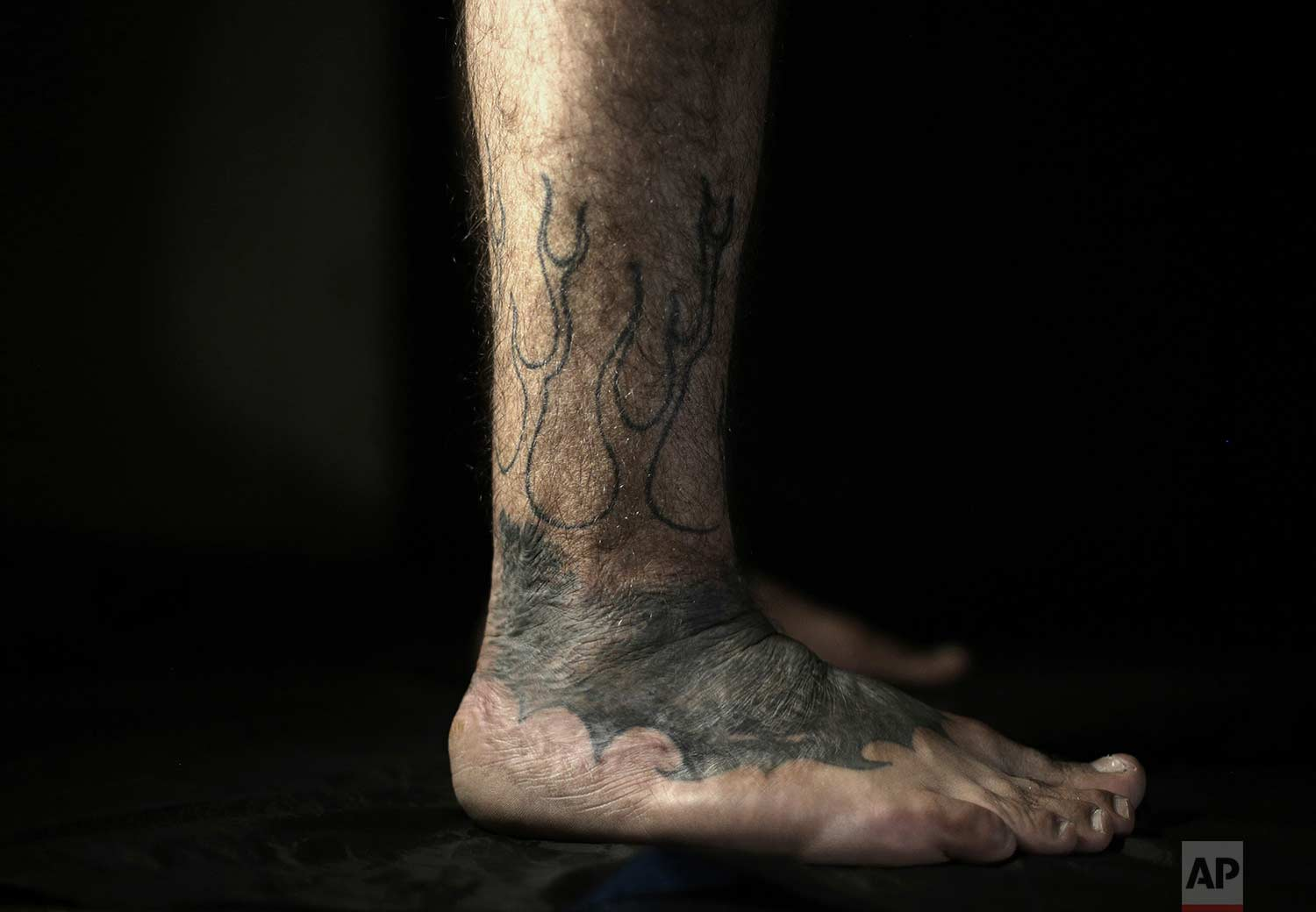 In this Wednesday, Oct. 24, 2018, photo, Iraqi soldier Saad Khudeir displays his tattoo on his leg covering scars of the burns he suffered in a car bomb attack, in Baghdad, Iraq. The tattoos run all over his body. They are not only to hide his war scars, but also to document his emotional ones. (AP Photo/Hadi Mizban)