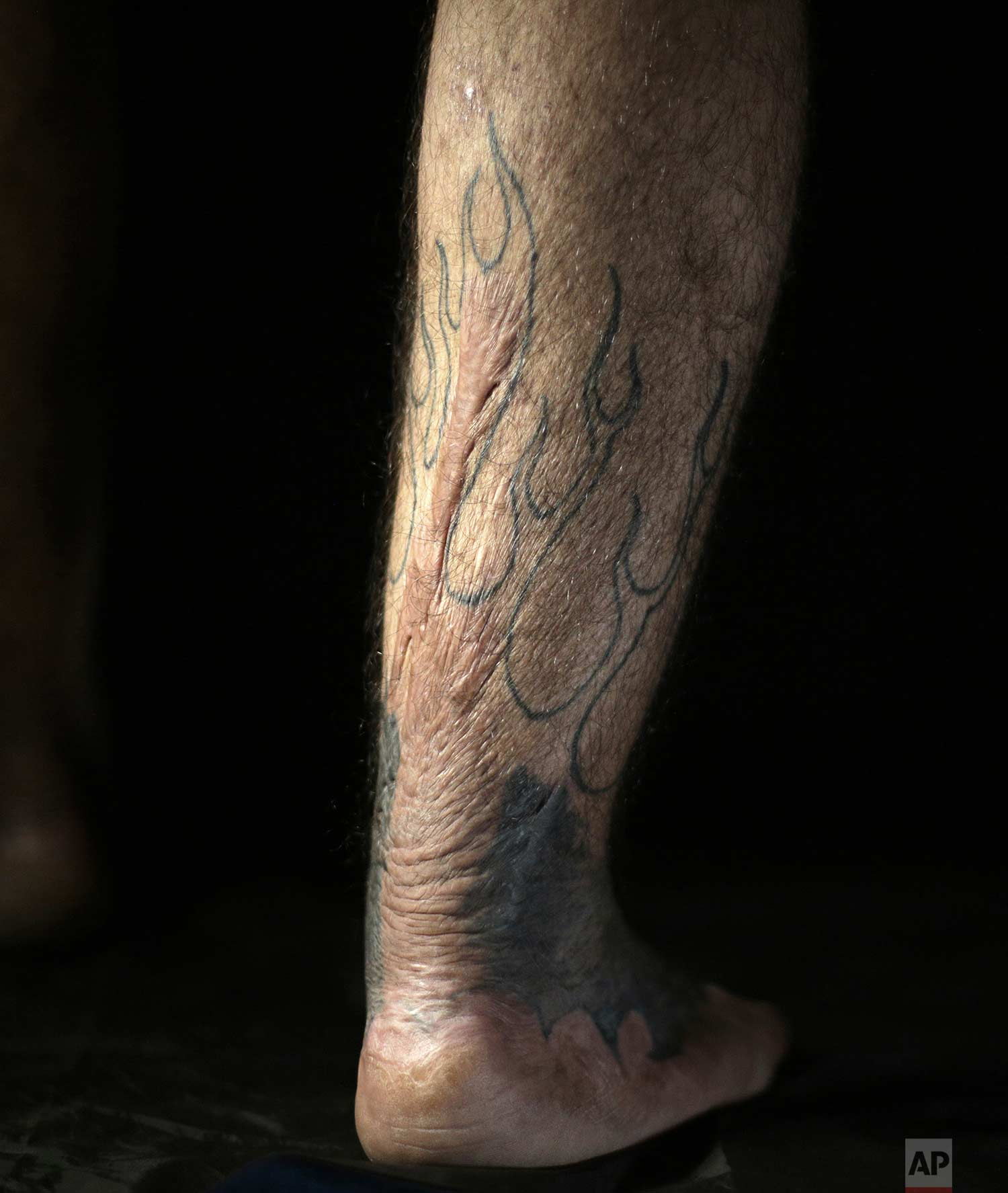 "In this Wednesday. Oct. 24, 2018, photo, Iraqi soldier Saad Khudeir displays a tattoo on his leg to cover scars of the burns he suffered in a car bombing, in Baghdad, Iraq. ""I don't want just to cover my wounds, but also to tell the story behind my physical and emotional ones,"" he said. ""Through Christian icons, I want to say that there is no difference between Muslim and Christians, and the flames explain the fire still raging inside me for my loss,"" he added. (AP Photo/Hadi Mizban)"