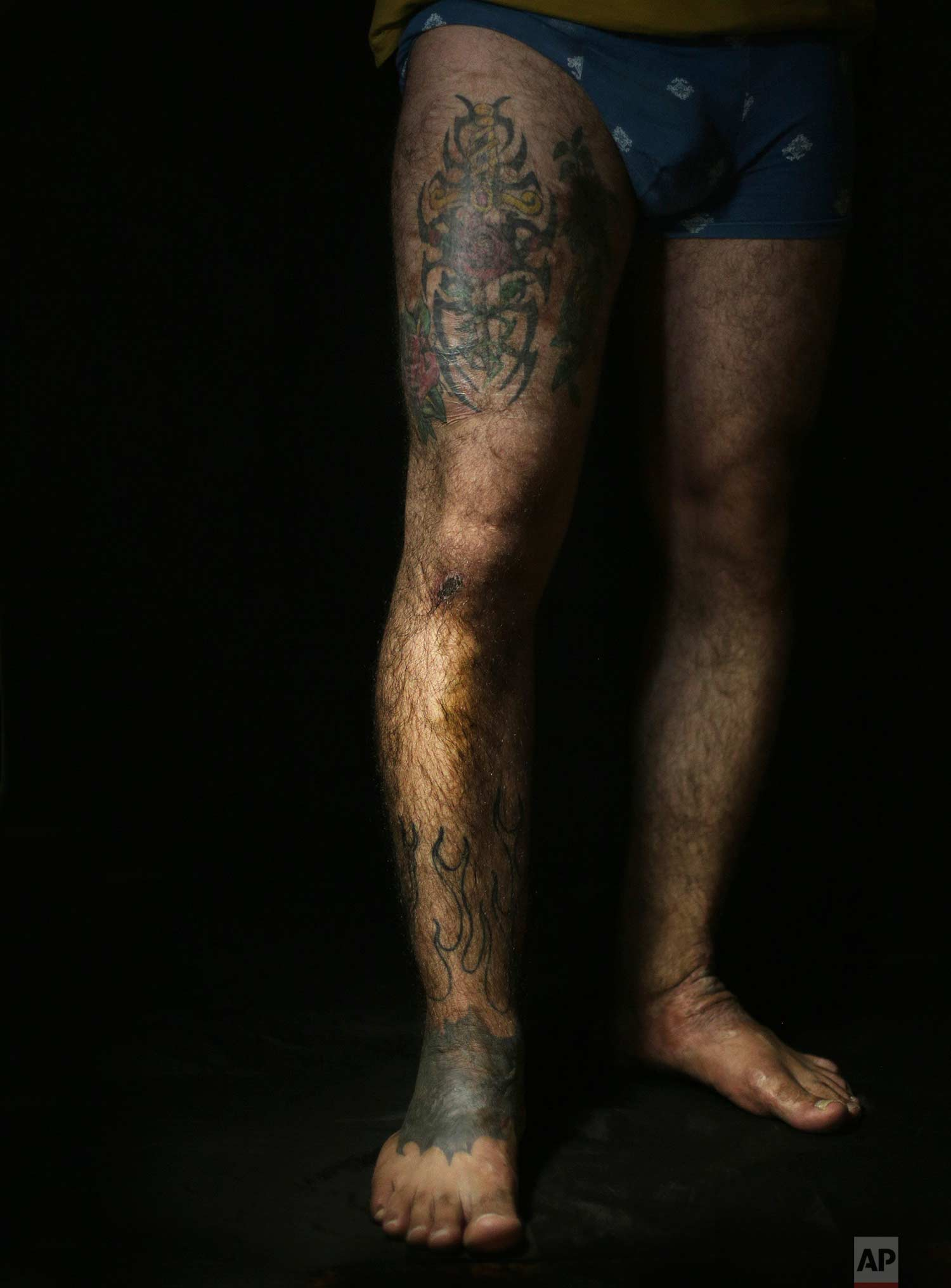 "In this Wednesday. Oct. 24, 2018, photo, Iraqi soldier Saad Khudeir displays tattoos on his leg to cover scars of the burns he suffered in a car bombing, in Baghdad, Iraq. ""People stared at me and sometime I felt they were scared of me at the swimming pool,"" Khudeir, 36, told The Associated Press, recalling how he decided to cover up his scars to for a better appearance. (AP Photo/Hadi Mizban)"