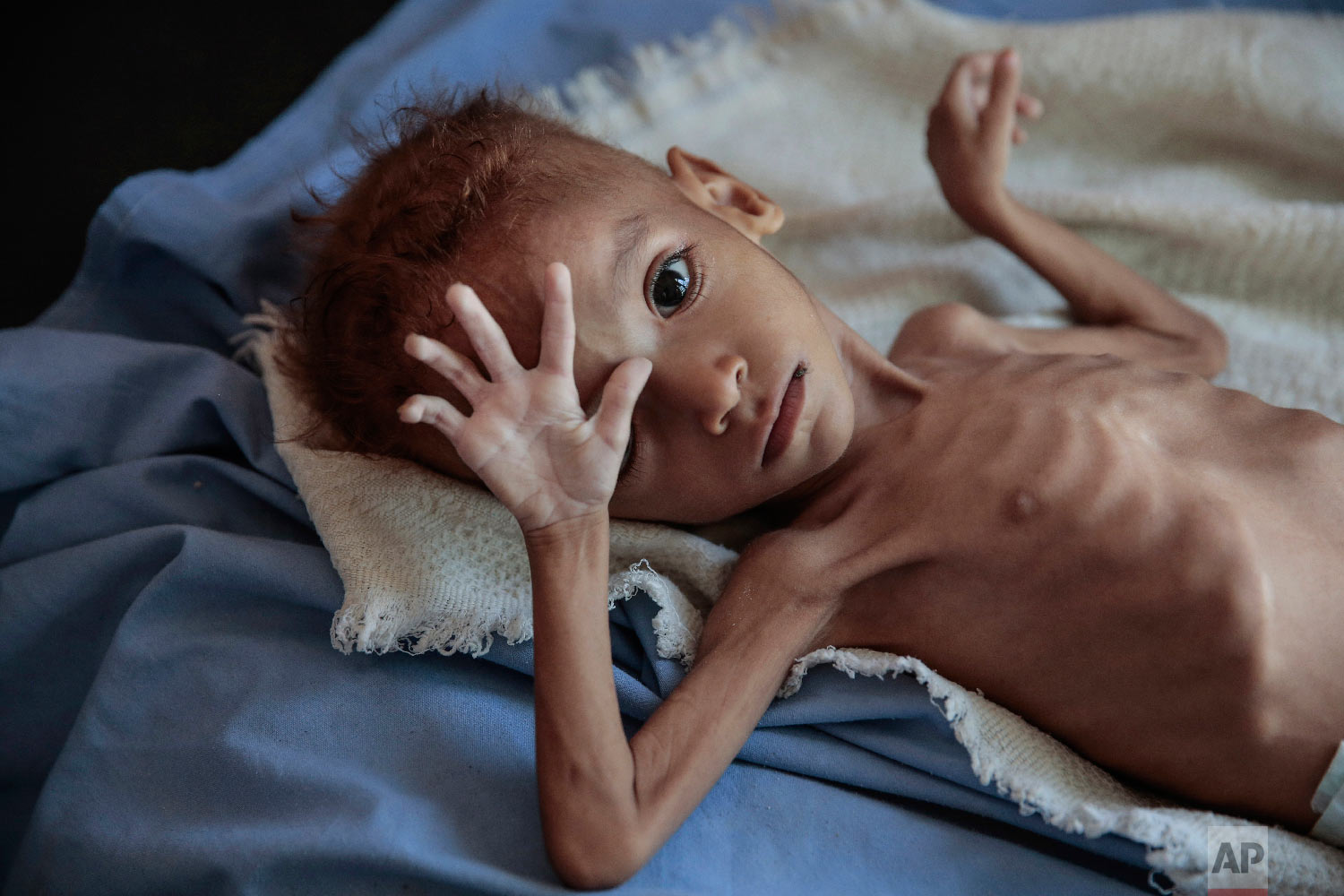 A severely malnourished boy rests on a hospital bed at the Aslam Health Center, Hajjah, Yemen, Oct. 1, 2018. (AP Photo/Hani Mohammed)