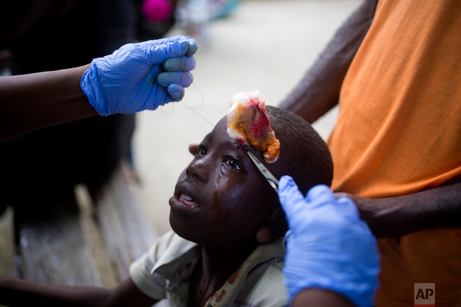 In this Oct. 7, 2018 photo, a boy injured by an aftershock gets stitches at the general hospital in Port-de-Paix, Haiti. A magnitude 5.2 aftershock that killed at least 12 people struck as survivors of the previous day's temblor were sifting through the rubble of their homes. (AP Photo/Dieu Nalio Chery)