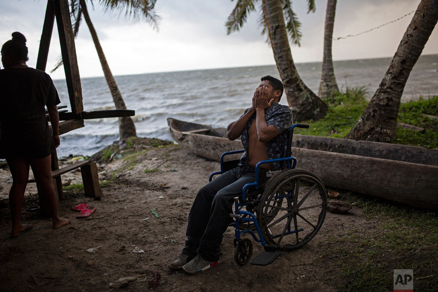 In this Jan 31, 2018 photo, 28-year-old lobster diver Charly Melendez puts his hands over his face in frustration as he comes to terms with having to rely on a wheelchair to get around, in Puerto Lempira, Honduras. (AP Photo/Rodrigo Abd)