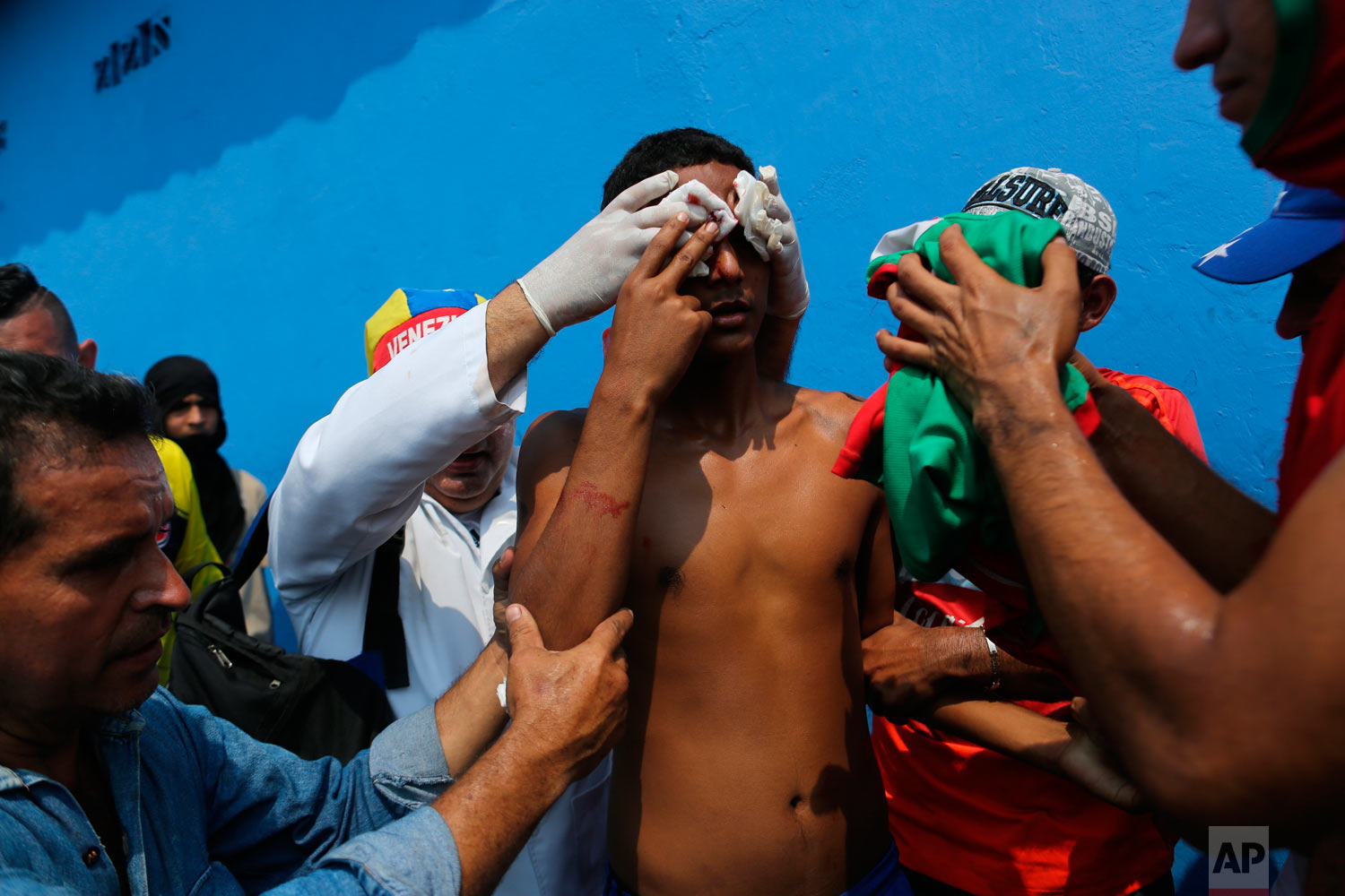 A demonstrator is given first aid after he was injured in the face during clashes with the Venezuelan Bolivarian National Guard in Urena, Venezuela, near the border with Colombia, Saturday, Feb. 23, 2019. (AP Photo/Rodrigo Abd)