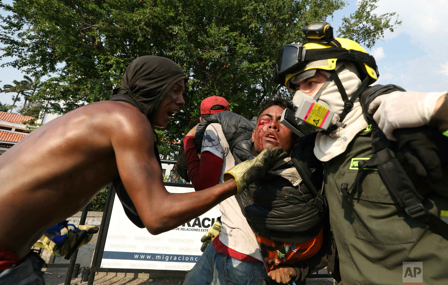 A Venezuelan youth, injured in clashes with Venezuelan National Guardsmen, is carried to a safe zone, at the Simon Bolivar International Bridge in La Parada, Colombia, Feb. 25, 2019. (AP Photo/Fernando Vergara)