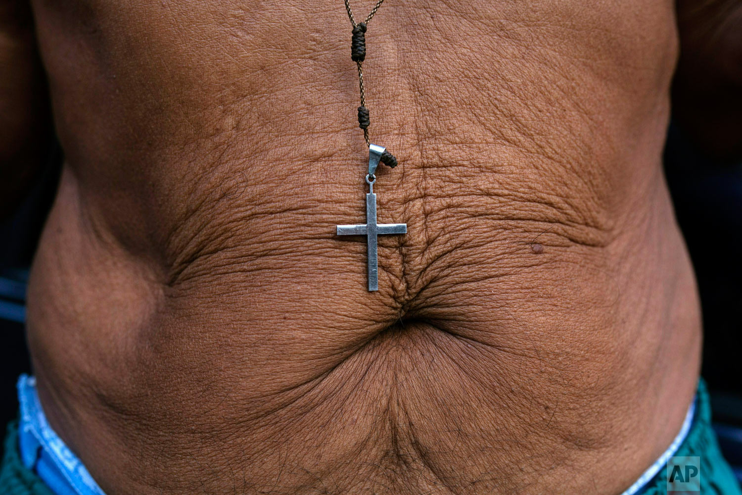 A crucifix hangs over the belly of 71-year-old Rafael Ricardo, who says he has lost 21 kilos in the last 2 years due to the economic crisis in the country, in Caracas, Venezuela. (AP Photo/Rodrigo Abd)
