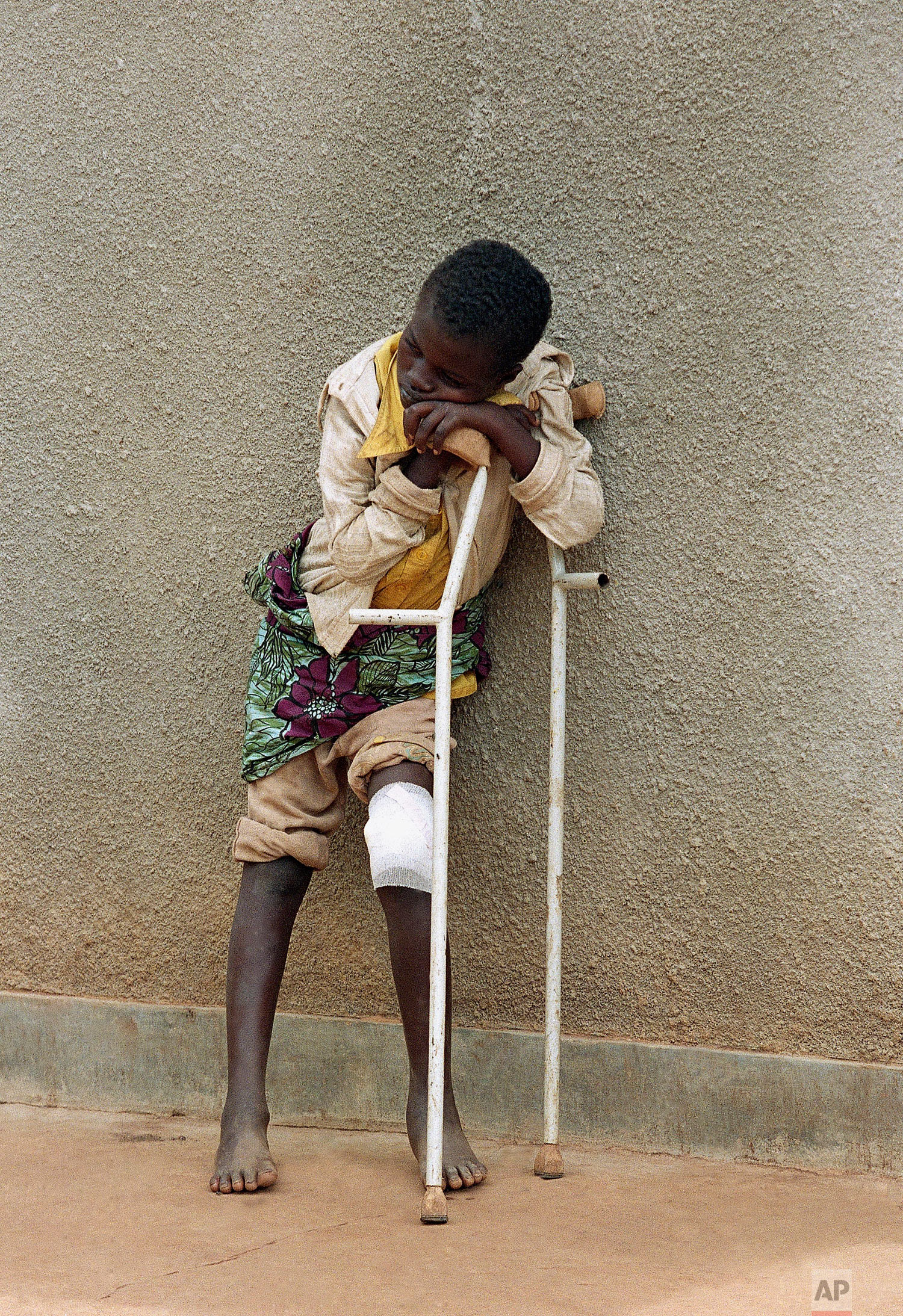 A boy, who survived a massacre in the village of Karubamba in April and whose leg was injured by a machete, rests at a hospital near Gahini, in Rwanda, May 13, 1994. (AP Photo/Jean-Marc Bouju)