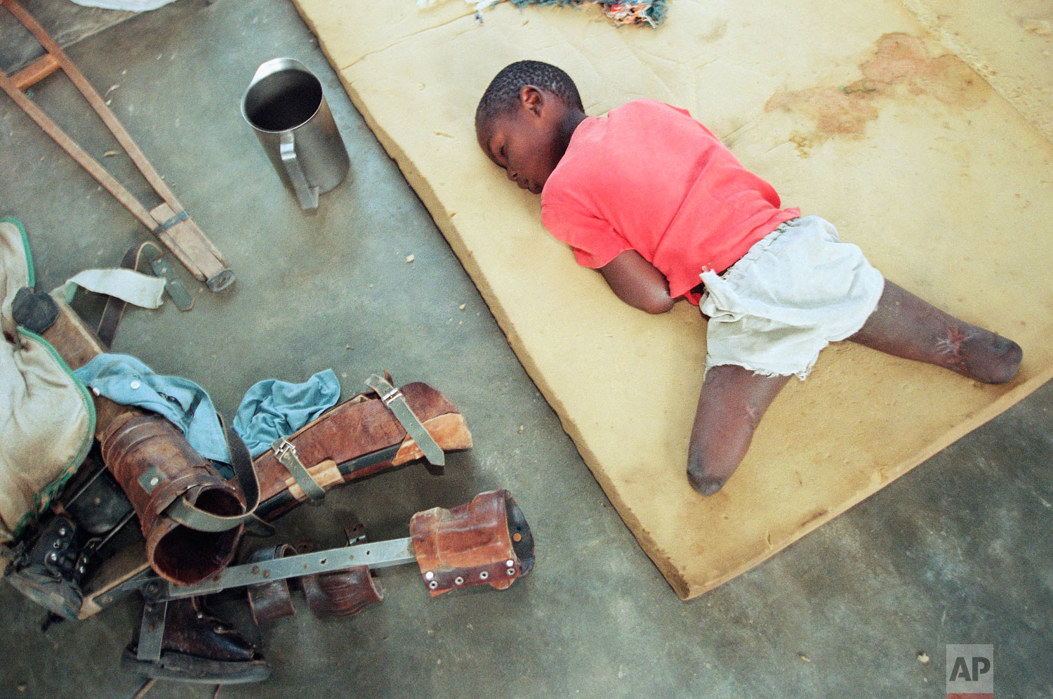 A young orphan, his legs amputated below the knee, rests on a foam cushion near his artificial limbs at an orphanage in Nyanza, near the capital Kigali, Rwanda, June 9, 1994. (AP Photo/Jean-Marc Bouju)