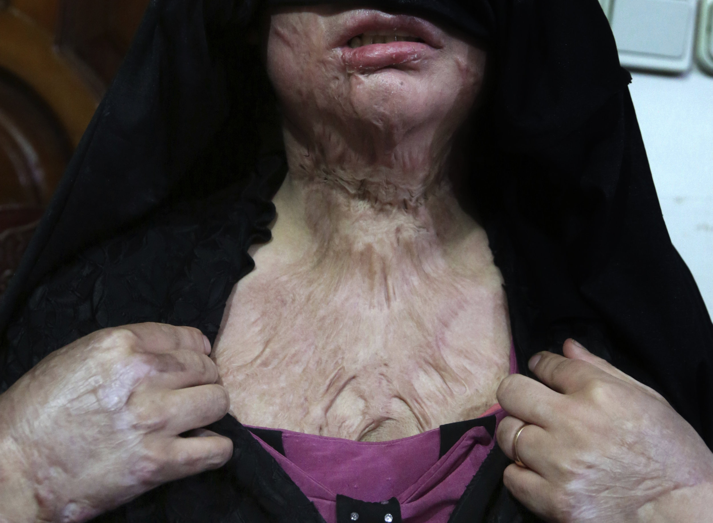 Khadeja, 18, who was burned by a pot of scalding hot water thrown by her husband, shows her wounds, at a women's shelter office in Herat, Afghanistan on Monday, Feb. 18, 2019. (AP Photo/Rahmat Gul)