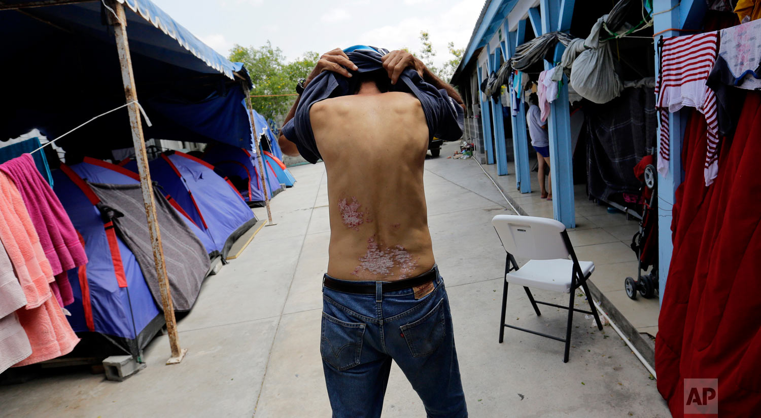 Jose Alfredo Diaz Reyes, 60, of Honduras, shows scarring on his lower back that he says is from an attack by suspected gang members in his native country while waiting at the Senda de Vida shelter in Reynosa, Mexico, May 1, 2019. (AP Photo/Eric Gay)