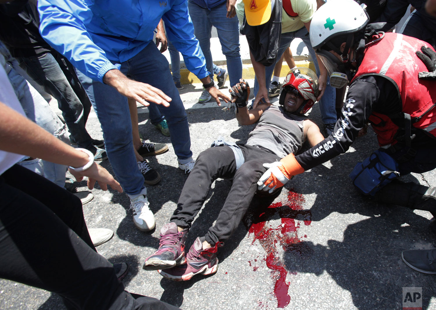 A man who was run over by a National Guard vehicle is aided by fellow anti-government protesters outside La Carlota airbase during an attempted military uprising in Caracas, Venezuela, Tuesday, April 30, 2019. (AP Photo/Boris Vergara)
