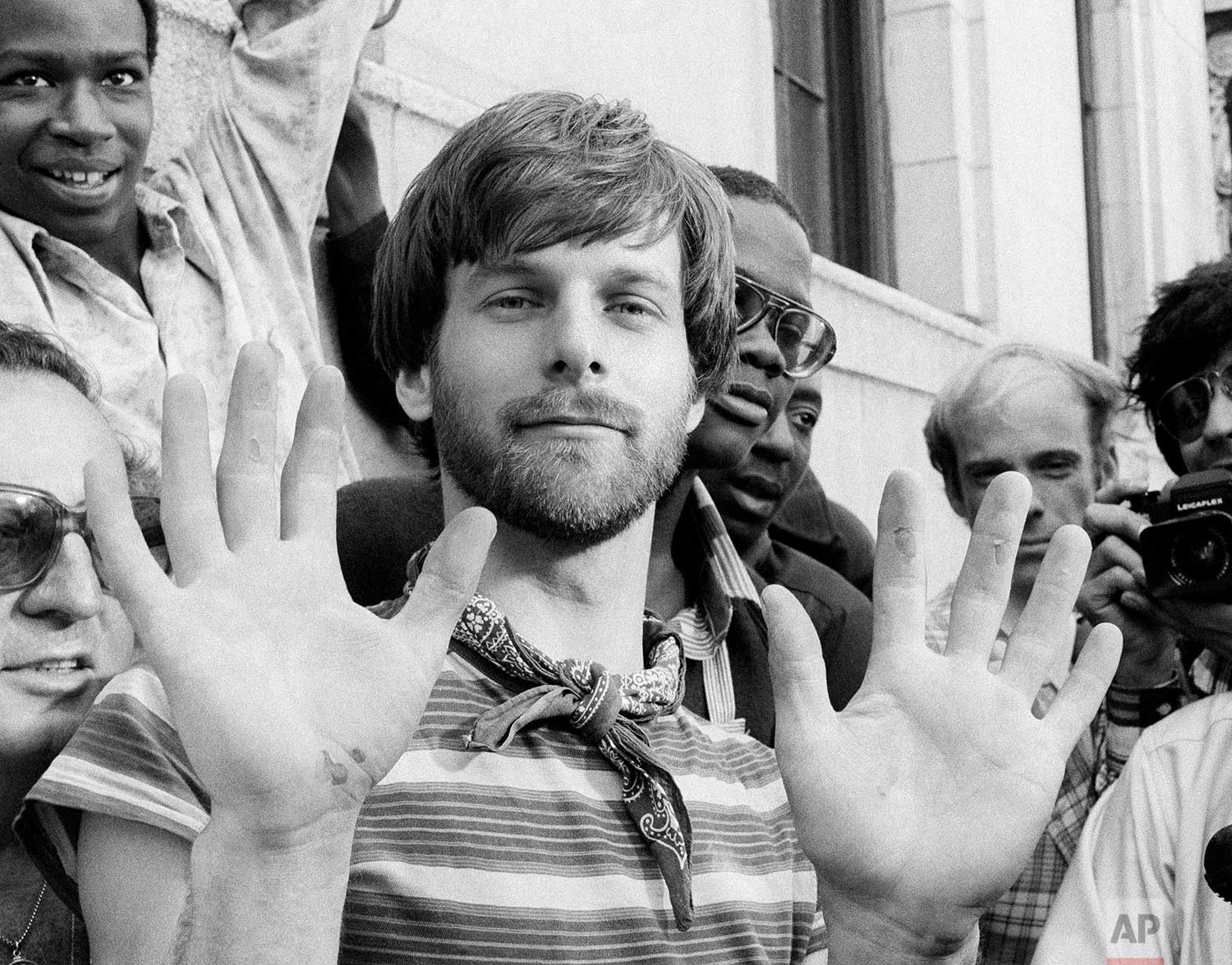 George Willig displays blistered hands after climbing to the top of the south tower of the World Trade Center in New York, May 26, 1977. Willig used a modified climbing rig to pull himself up the sheer side of the building hand over hand. (AP Photo/Dan Grossi)