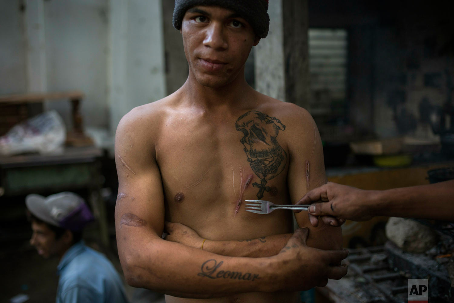 Leomar Aguilar show the scars he got in prison as he gathers with friends outside a building occupied by squatting families in Caracas, Venezuela, Tuesday, May 7, 2019. Aguilar spent six years in prison after being convicted of robbery but went to live with the squatters after his release as he had nowhere else to go. (AP Photo/Rodrigo Abd)
