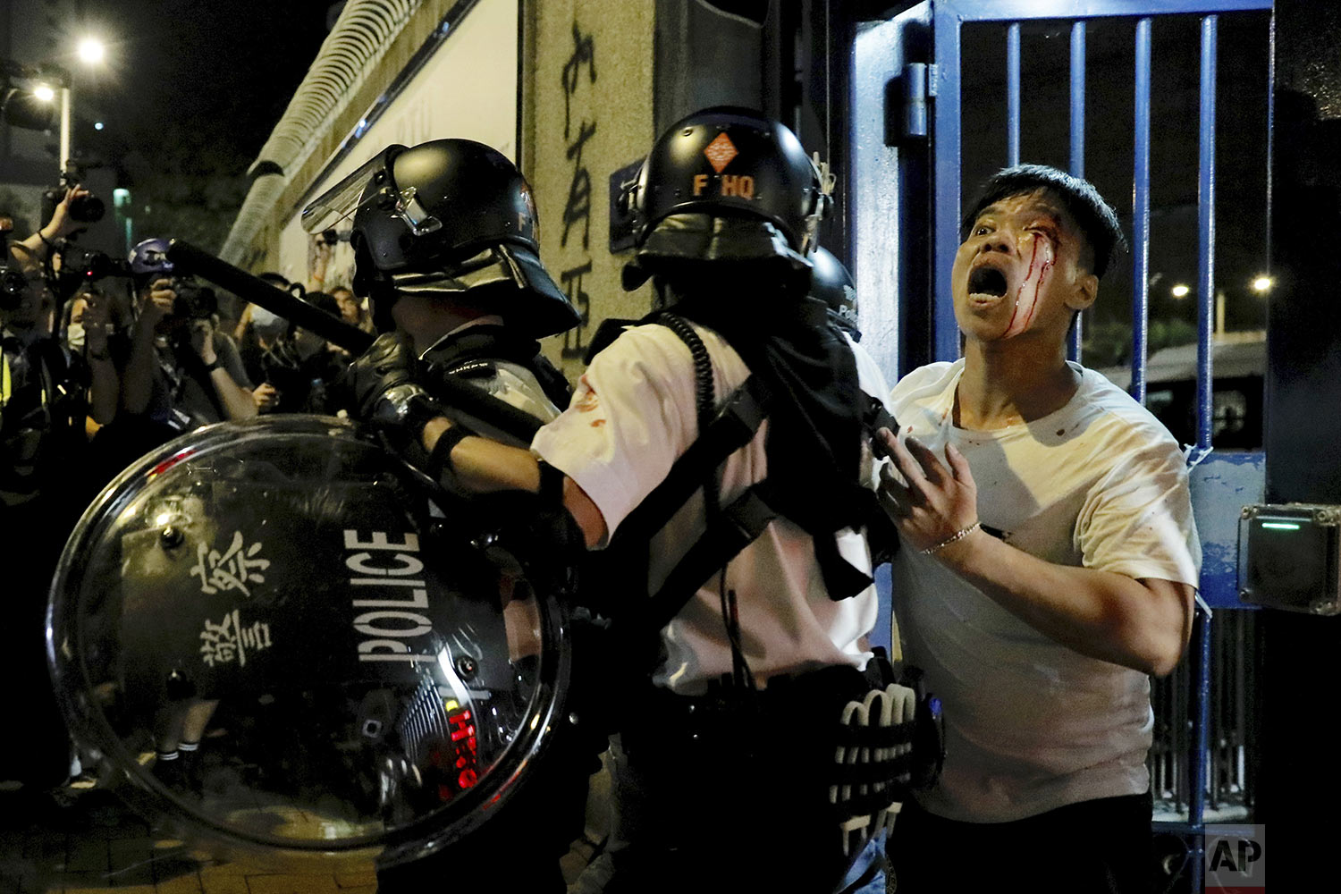 A bleeding man is taken away by policemen after attacked by protesters outside Kwai Chung police station in Hong Kong, Wednesday, July 31, 2019.  (AP Photo/Vincent Yu)