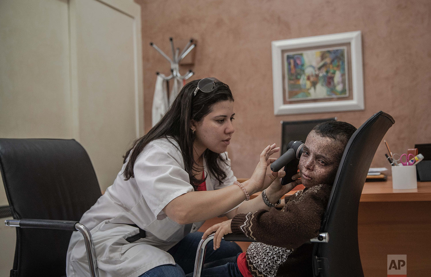 A nurse performs skin checkups for 8-year-old Mustapha, who is affected by a rare disorder called xeroderma pigmentosum, or XP, inside a hospital in Casablanca, Morocco, July 24, 2019. (AP Photo/Mosa'ab Elshamy)