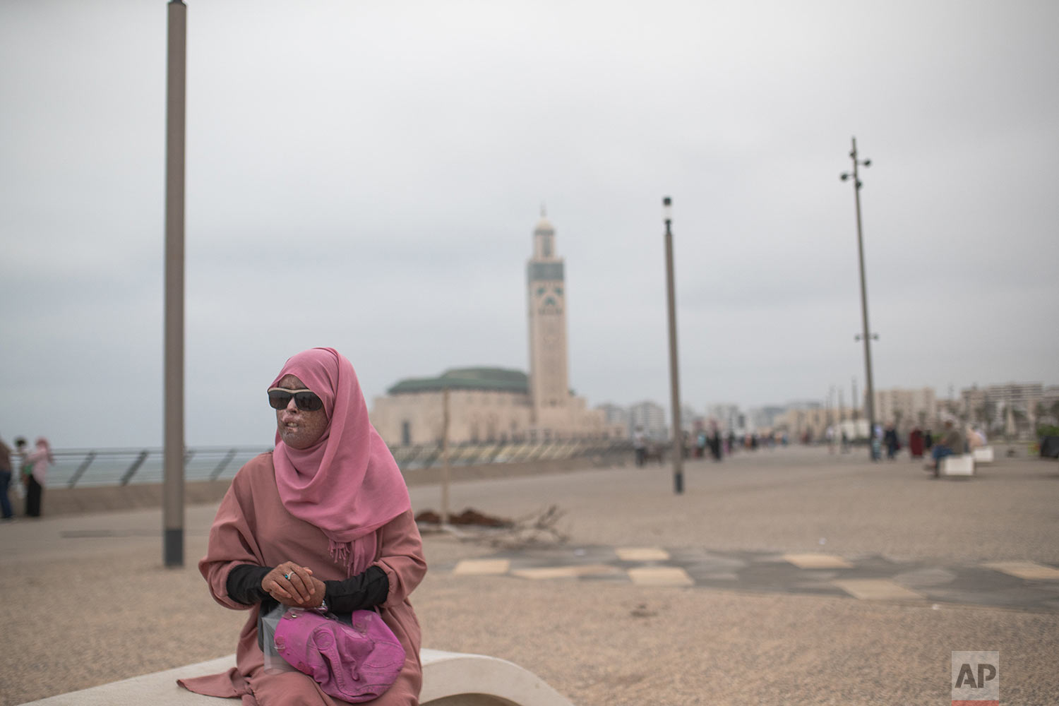 Fatimazehra Belloucy, 25, a woman affected by a rare disorder called xeroderma pigmentosum, or XP, poses for a portrait by the corniche in Casablanca, Morocco, July 24, 2019. (AP Photo/Mosa'ab Elshamy)