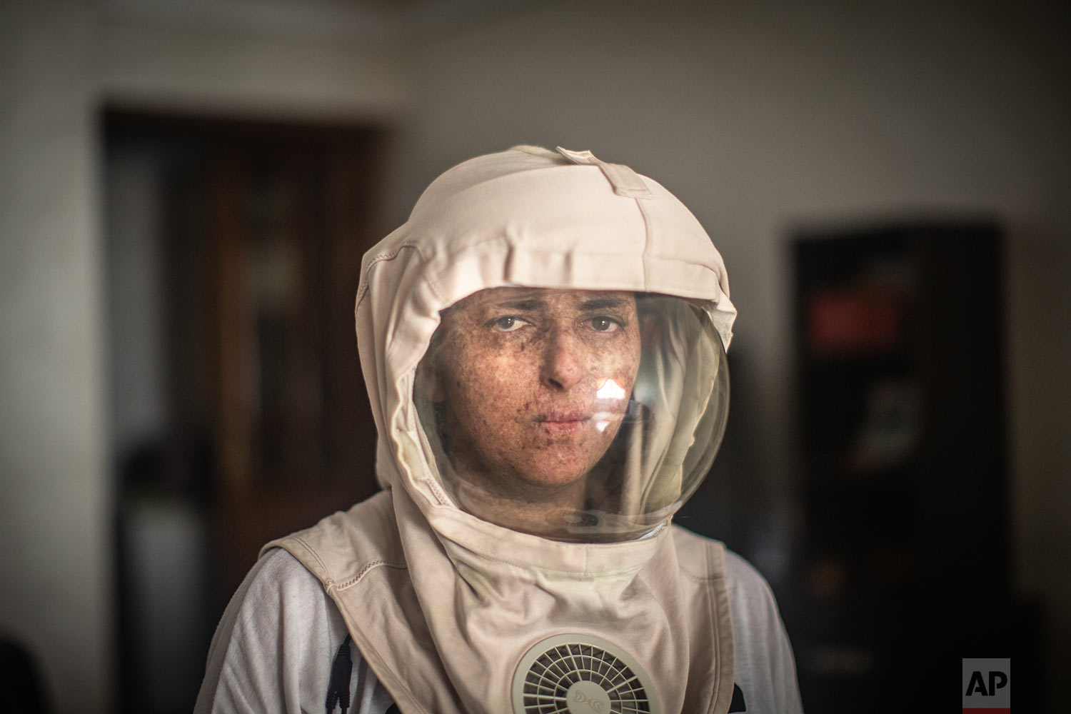 Fatimazehra El Ghazaoui, 27, a woman affected by a rare disorder called xeroderma pigmentosum, or XP, poses for a portrait wearing a protective mask she wears outside on sunny days, in her home in Mohammedia, near Casablanca, Morocco, July 16, 2019. (AP Photo/Mosa'ab Elshamy)