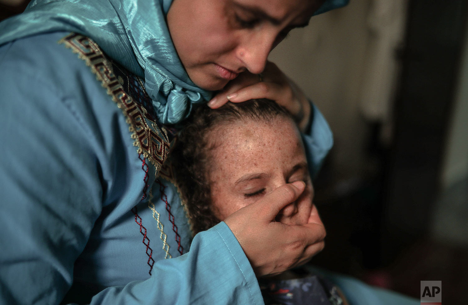 Maria El Maroufi, holds her 6 year old daughter Romaisae who is affected by a rare disorder called xeroderma pigmentosum, or XP, in their home in the town of Sale, near Rabat, Morocco, July 23, 2019. (AP Photo/Mosa'ab Elshamy)