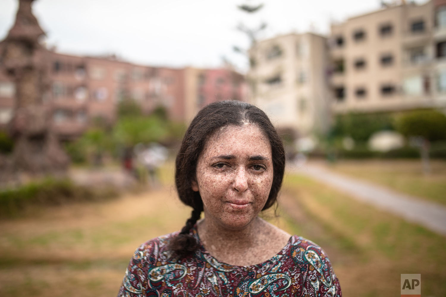 Fatimazehra El Ghazaoui, 27, a woman affected by a rare disorder called xeroderma pigmentosum, or XP, poses for a portrait inside her home in Mohammedia, near Casablanca, Morocco, July 16, 2019. (AP Photo/Mosa'ab Elshamy)