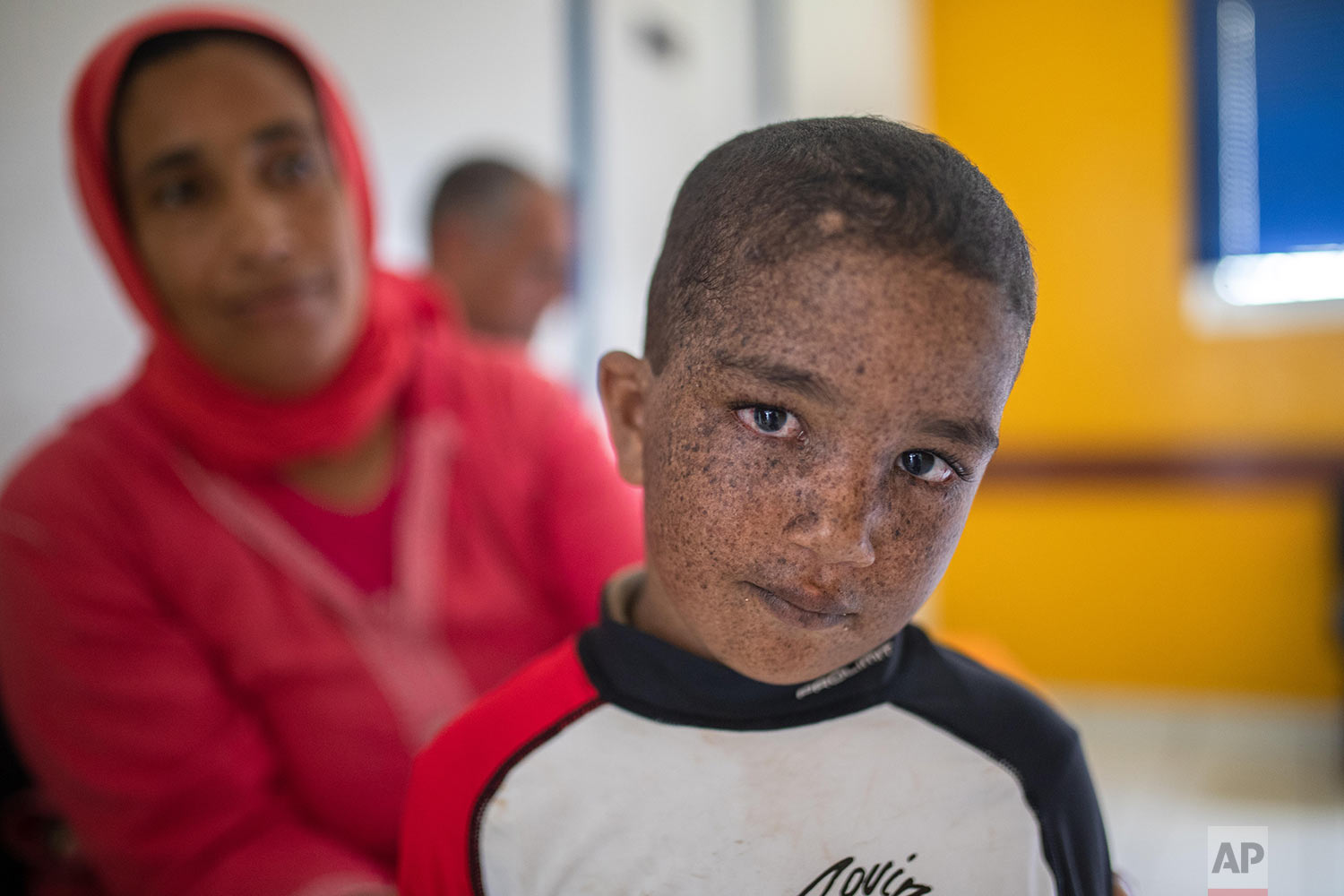 Mohammad, 6, who is affected by a rare disorder called xeroderma pigmentosum, or XP, waits with his mother inside a hospital in Casablanca, Morocco, July 24, 2019. (AP Photo/Mosa'ab Elshamy)