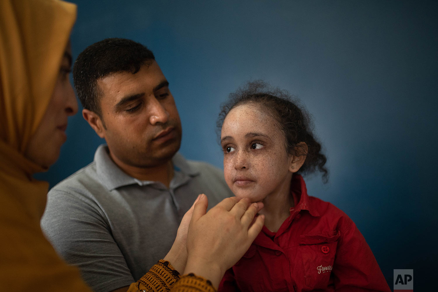 Rabiaa Waraqa, left, and Salaheddine Elkalshi, center, apply a cream to their 6 year old daughter Yasmin, who is affected by a rare disorder called xeroderma pigmentosum, or XP, in Casablanca, Morocco, July 24, 2019. (AP Photo/Mosa'ab Elshamy)