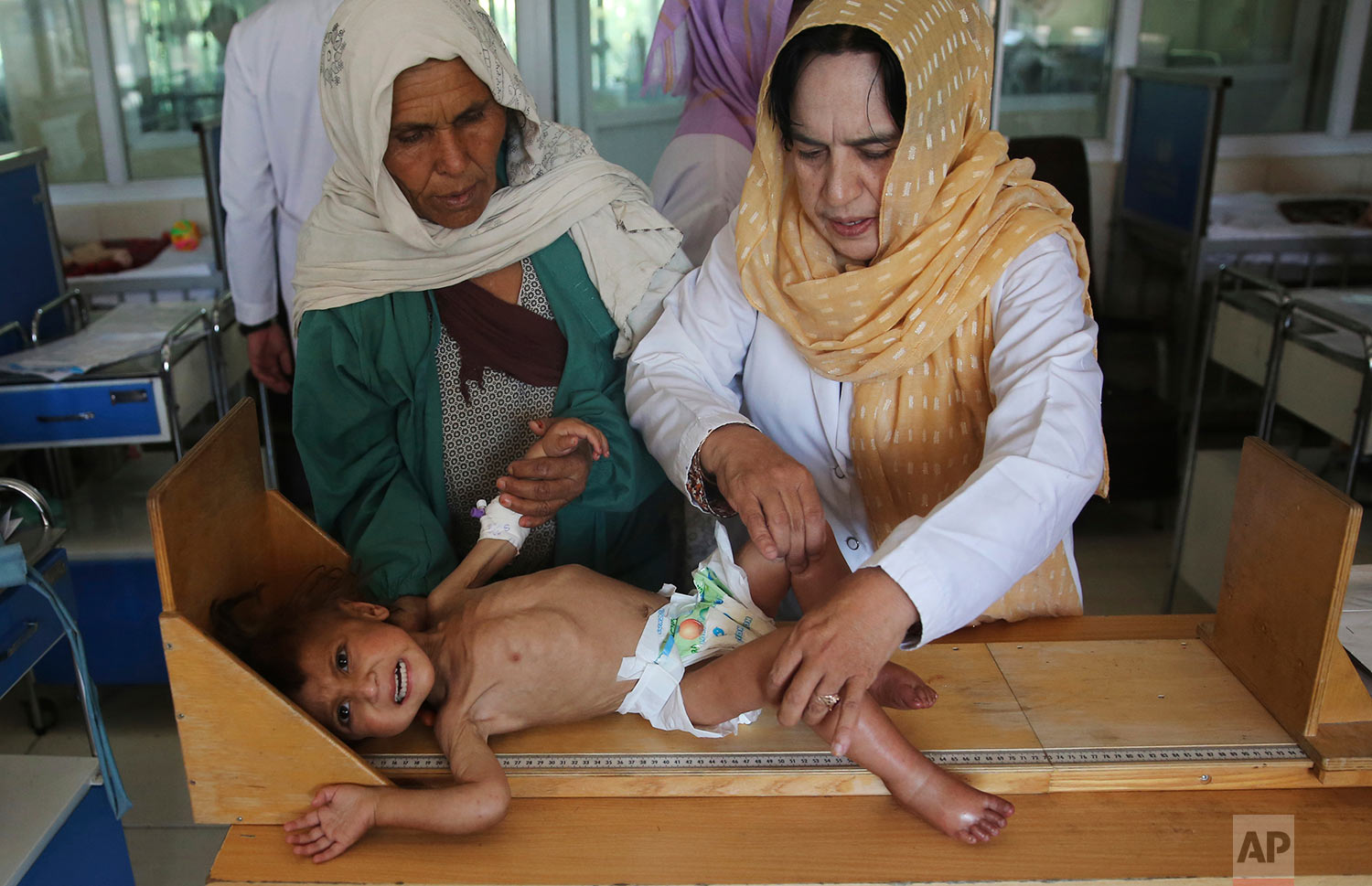 A nurse, right, checks the height of a malnourished girl, Humaira, in a ward at Indira Gandhi hospital in Kabul, Afghanistan, Aug. 21, 2019. (AP Photo/Rafiq Maqbool)