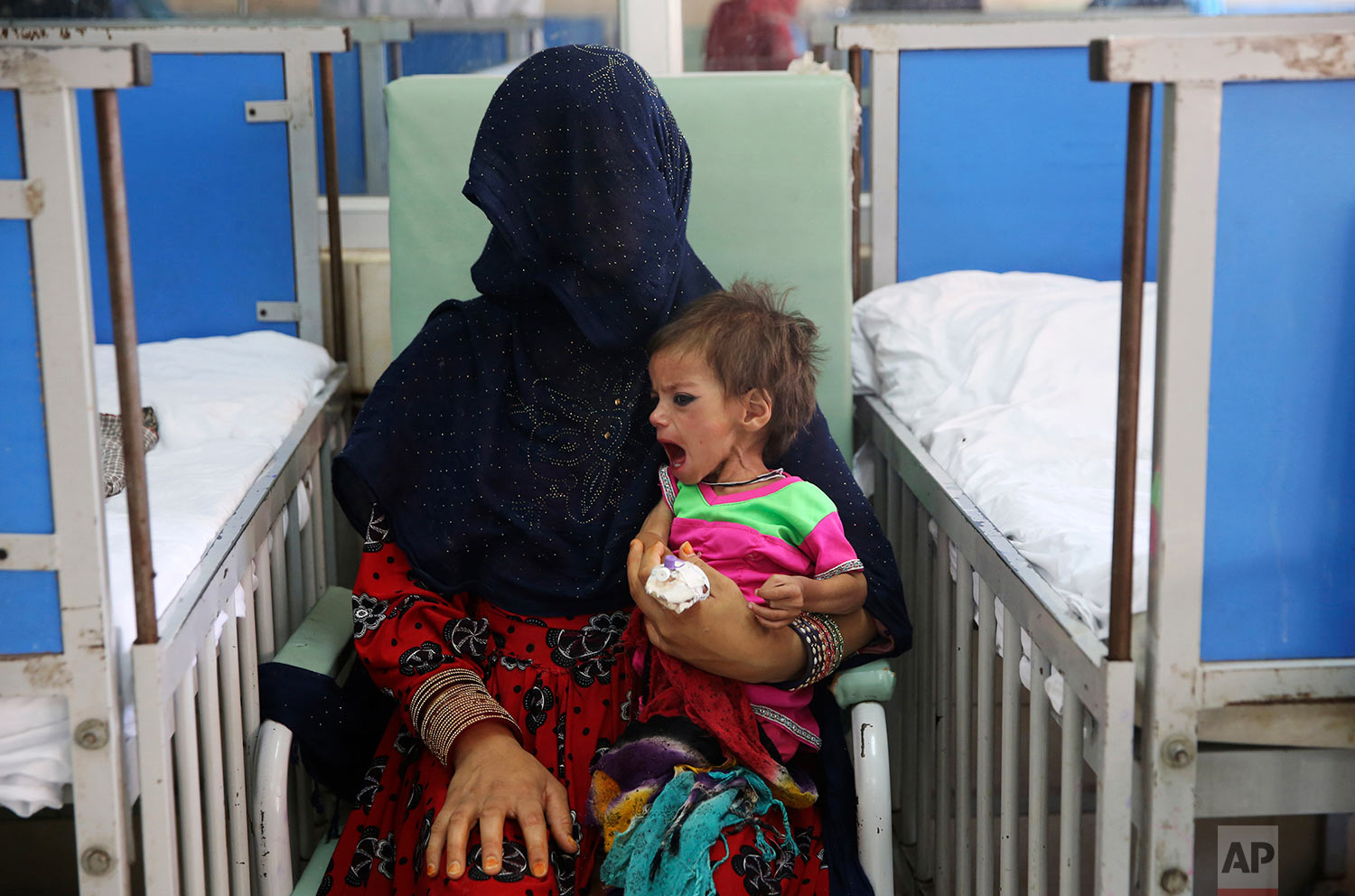 A woman holds her malnourished girl in a ward at the Indira Gandhi hospital in Kabul, Afghanistan, Aug. 21, 2019. (AP Photo/Rafiq Maqbool)