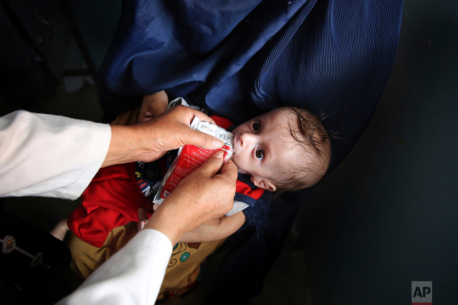 A health worker feeds a supplement as part of a nutrition regime to 7-month-old Abdullah, who is suffering from malnutrition at UNICEF clinic in Jabal Saraj north of Kabul, Afghanistan, Aug. 26, 2019. Days ago, he was at an emergency ward. (AP Photo/Rafiq Maqbool)