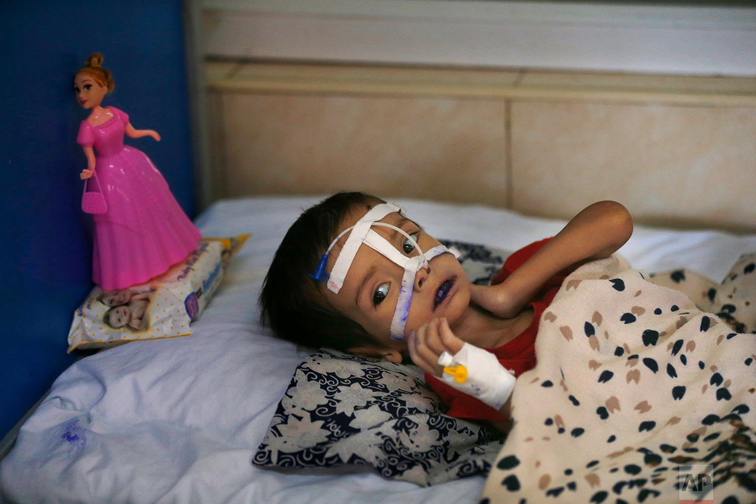 A malnourished girl lies on a bed in a ward at Indira Gandhi hospital in Kabul, Afghanistan, Aug. 21, 2019. (AP Photo/Rafiq Maqbool)