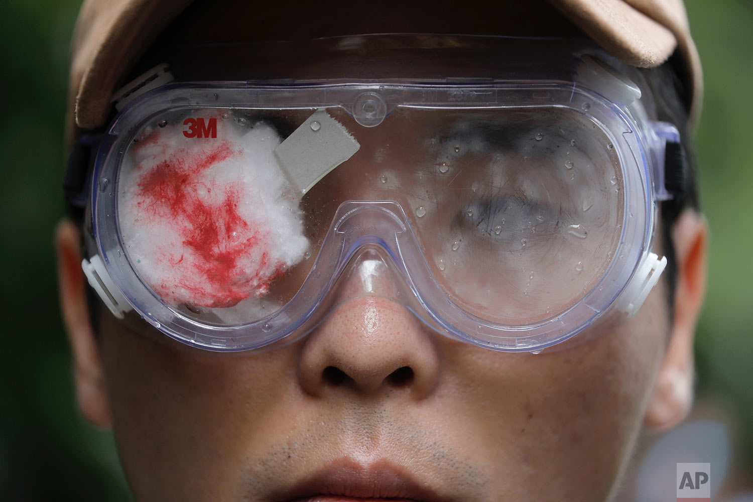 A pro-democracy protester with his eye covered in red-eyepatch, symbolizing a women reported to have had an eye ruptured by a beanbag round fired by police during clashes, participates in a march organized by teachers in Hong Kong Saturday, Aug. 17, 2019. (AP Photo/Vincent Yu)